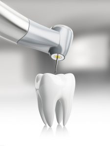 root canals pittsburgh