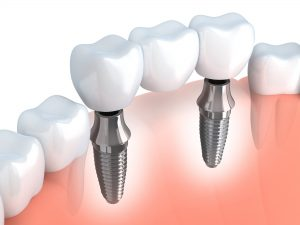 mcmurrary dental implants
