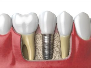 Dental Implants McMurray