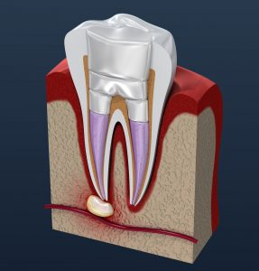 Root Canal McMurray