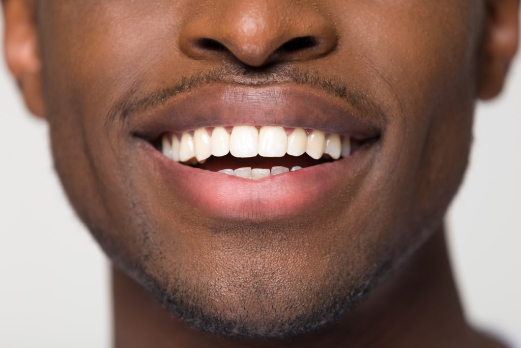 How Long Does Invisalign Take to Work? | Severns Dentistry